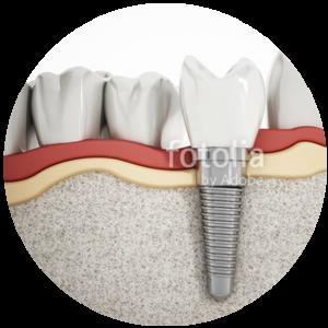 KDC_Implants_Image-300x300 KDC_Implants_Image