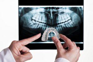 dental-x-ray-300x200 dental xray