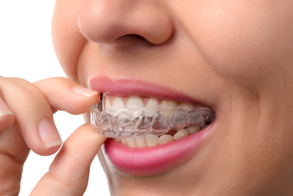 The benefit of orthodontics