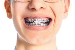 orthodontics-300x199 orthodontics