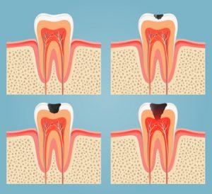 root-canal-treatment-300x274 root canal treatment
