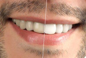 teeth-whitening-300x201 teeth whitening