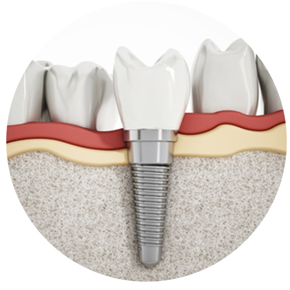 Dental-Implants-kits Home